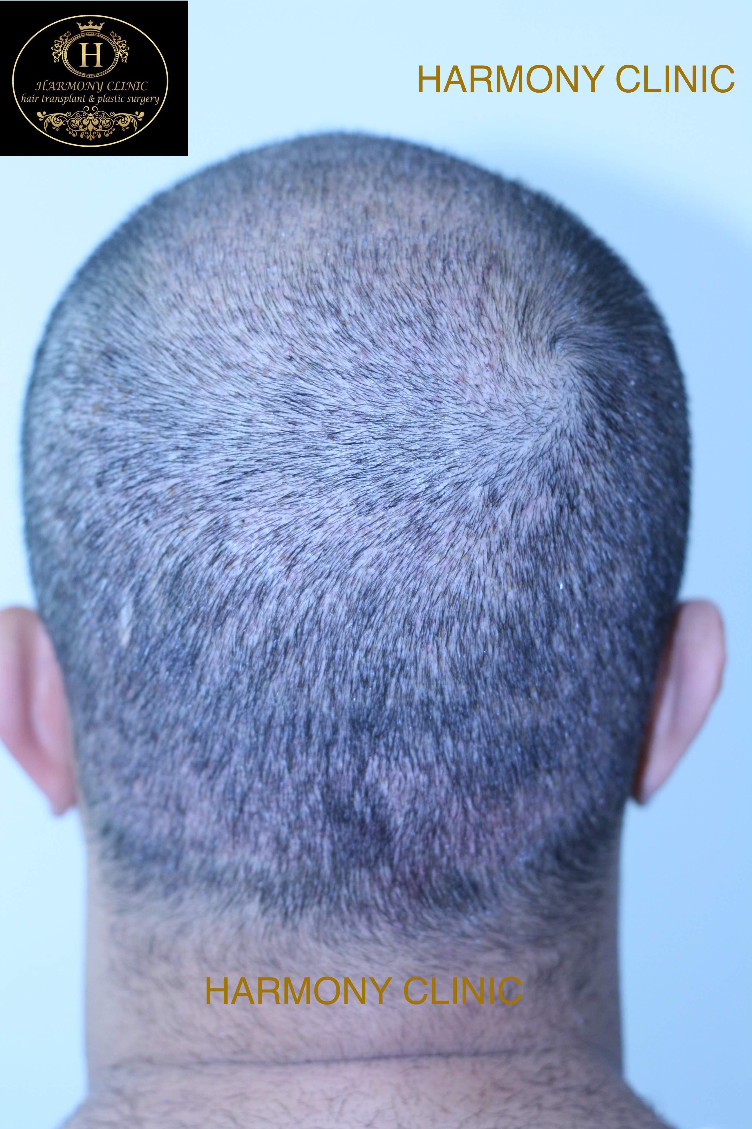 Patient-b-4200-grafts-after-9-days1