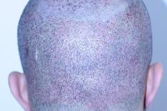 Patient-b-4200-grafts-after-2-days