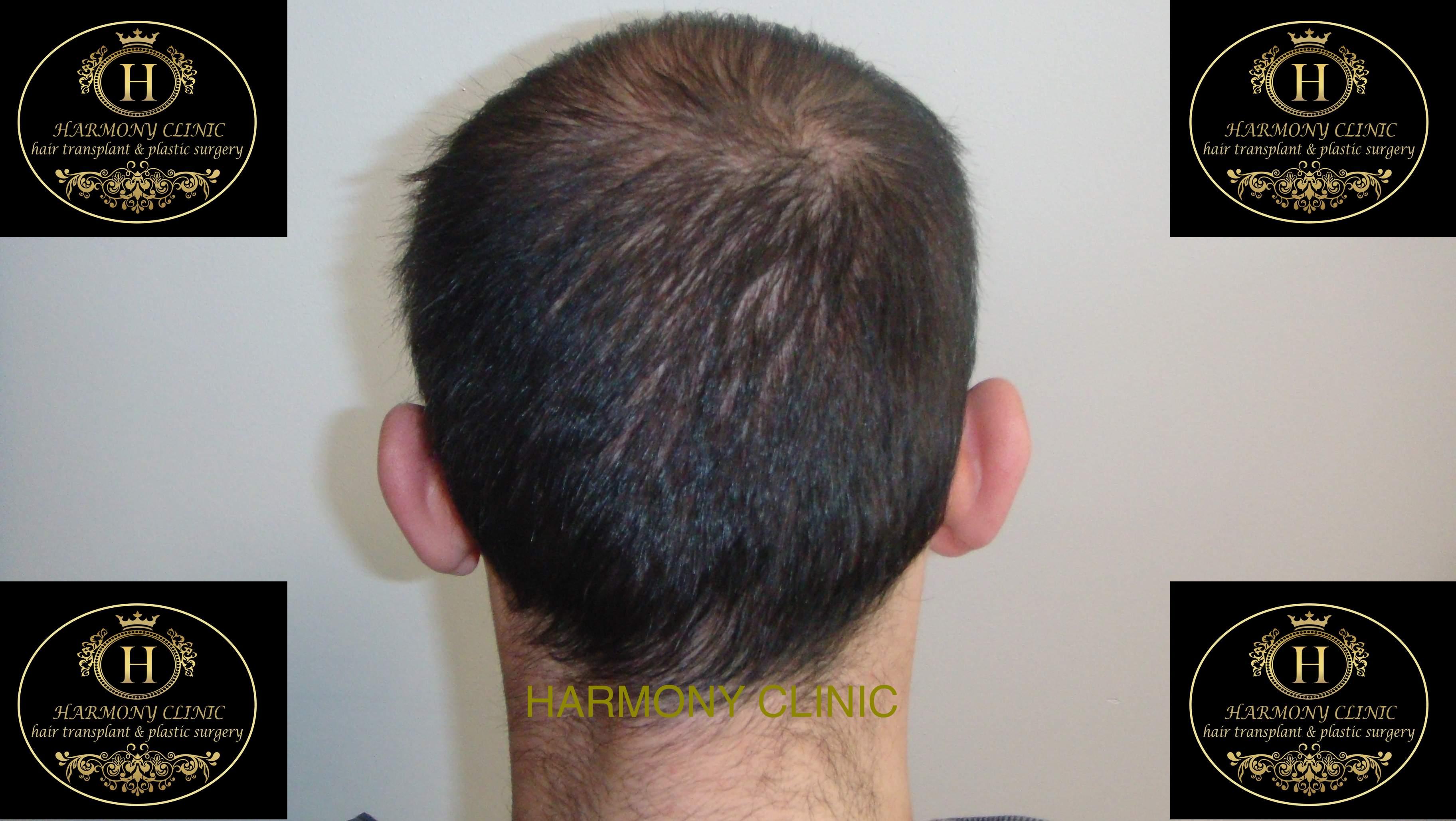 Patiente-e-3500-grafts-after-3-months